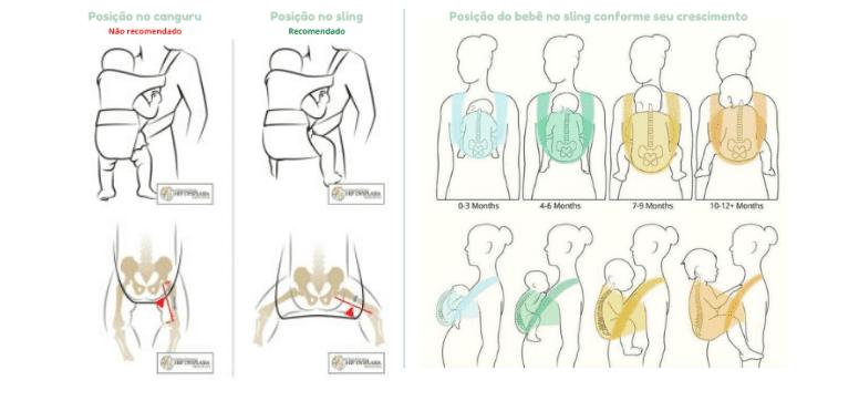 Explicação de como o recém nascido fica posicionado com a coluna em forma de C, pernas ficam na posição certa