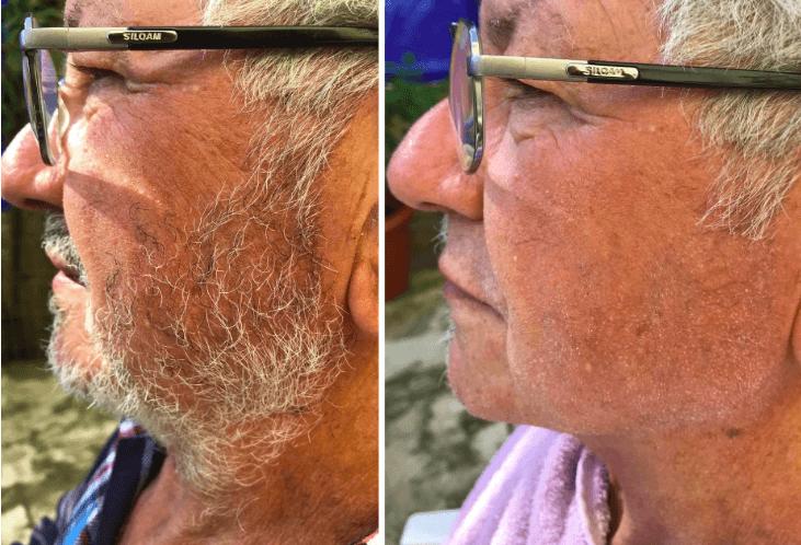 Comparativo da barba antes e depois do uso do One Blade